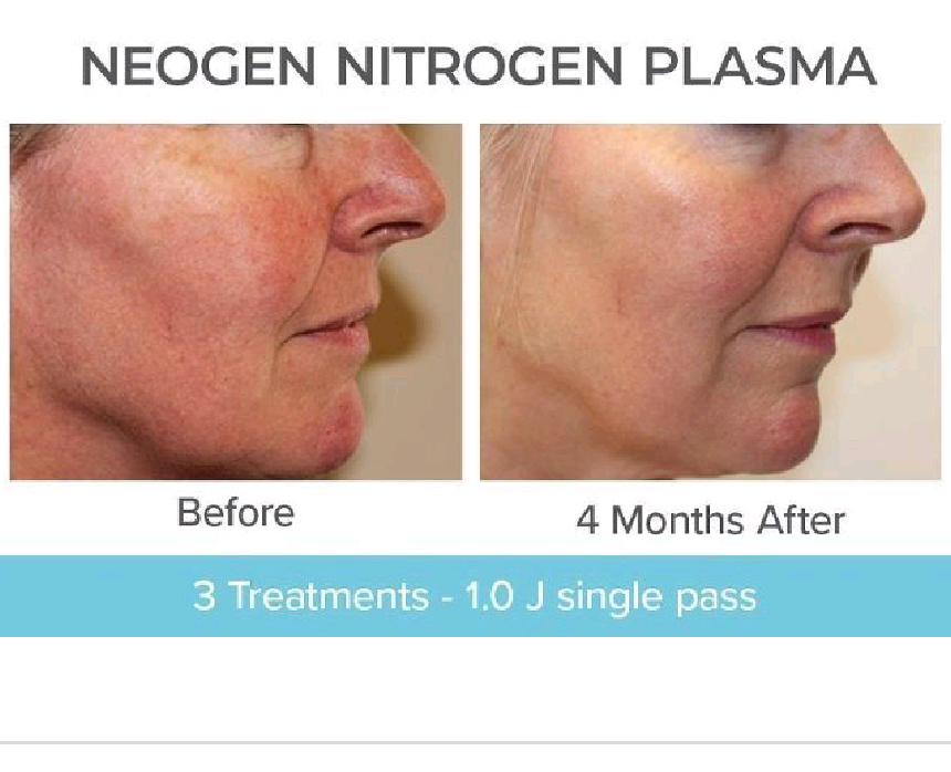 NeoGen Plasma Treatment